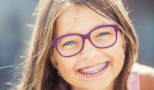 Braces Are An Incredible Resource To Help People Get A Healthy Smile That They Proud Share Heres Everything You Need Know About Straightening